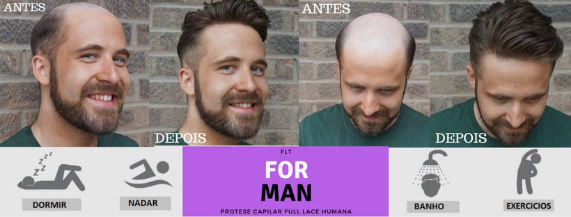 protese masculina peruca para homens