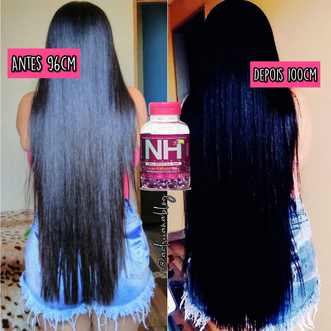 New Hair Seus Cabelos Merecem Crescer Fortes E Saudaveis