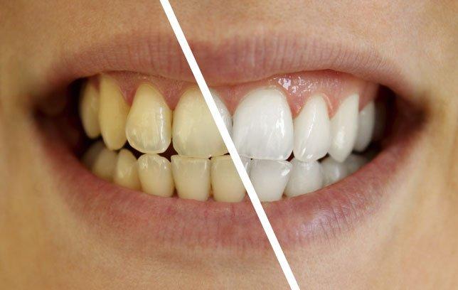 Aprenda A Clarear Seus Dentes Com Esta Receita Caseira Incrivel