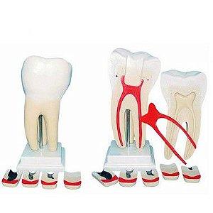 Dente molar ampliado em 8 partes com evolução da cárie
