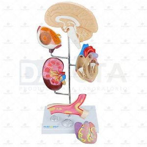 Modelo De Órgãos Afetados Pela Hipertensão Em 8 Partes