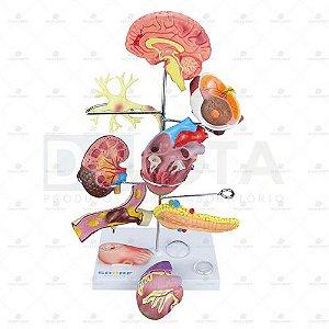 Modelo De Órgãos Afetados Pela Diabetes Em 11 Partes