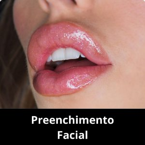 Preenchimento Facial - Ácido Hialurônico