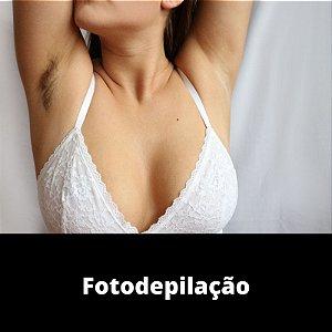 1 Sessão de Fotodepilação - ÁREA PEQUENA | Black Friday | Oferta Exclusiva