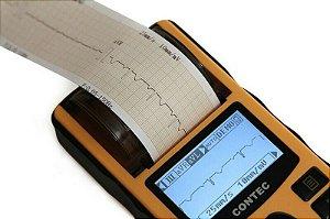Contec ECG80A Eletrocardiógrafo Máquina Ecg + Software + Impressora