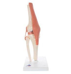 Modelo Luxo De Articulação Do joelho