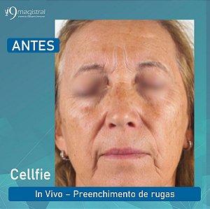 Harmonização Facial sem Agulhas com Cellfie 2%, Oligo Ha 0,3%, Lanablue  5% e Ácido hialuronico 3% 30g