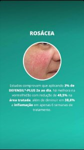Rosácea Gel Creme - Physavie 2%, Telangyn 2%, Defensil Plus 3%, Aveia Coloidal 5% 30g