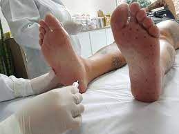 Botox para reduzir suor nos pés (hiperhidrose)