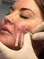 Fios de sustentação com Garras (Bioestimulação de colágeno e tração da pele) - KIT com 4 fios.
