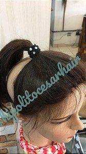 protese capilar frontal micropele alopecia