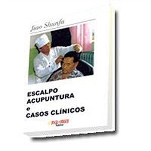 ESCALPO ACUPUNTURA E CASOS CLINICOS