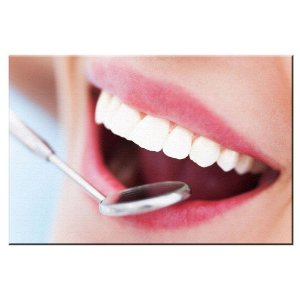 Quadro Consultorio Odontologico Sorriso Tela Decorativa