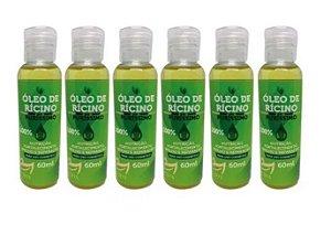 Kit 6 Oleo De Ricino Concentrado Pra Cabelos 100% Puro Vedis