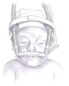 Kit Circuito CPAP Nasal Infantil com Cânula de Silicone