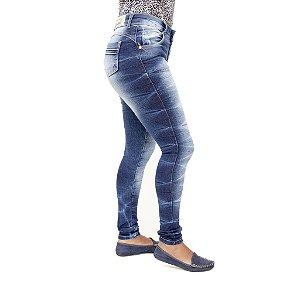 Calça Jeans Feminina Legging Deerf Azul Manchada Hot Pants com Cintura Alta