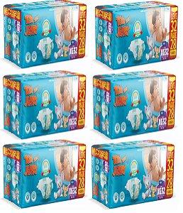 Fralda Descartável Infantil Tom E Jerry- XG 192 Unidades
