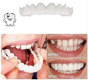 Prótese Encaixe Snap On Smile - Sorriso Perfeito Magic Smile Veneers - O sorriso de Holywood