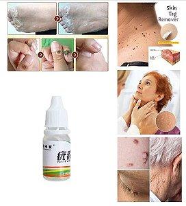 Solução Essência para Remoção de Verrugas
