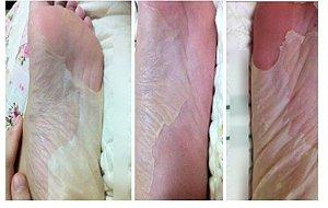 Peeling de Vinagre para os pés