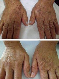 Manchas de Mãos com Luz Pulsada e Ácido