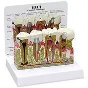 Modelo Anatômico do Dente