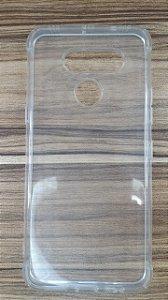 CASE STANDARD TPU LG - K50S