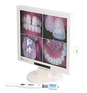 Câmera Intra Oral de Alta Resolução WI-FI com Monitor de 17 - Biotron