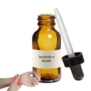 Homeopatia para Tendinite e bursite