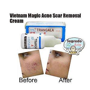 Creme Mágico Anti Acne / Espinha Trangala Vietnamita
