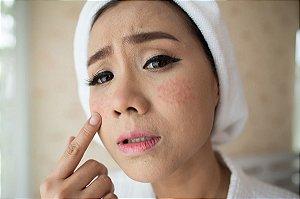 Protocolo de Tratamento de Manchas para Peles Sensíveis