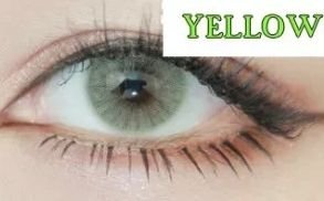 Lente Natural Aurora Yellow Mel/verde