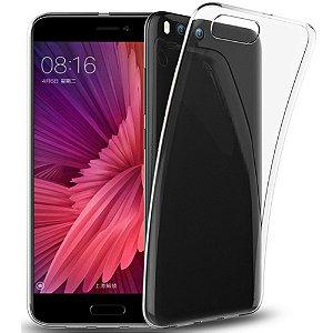 Capa Xiaomi Mi 6