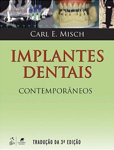 Implantes Dentais Contemporâneos - AMAZON