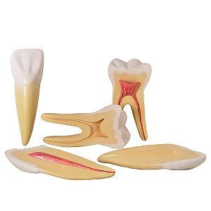Dentes Ampliados - Canino, Incisivo e Molar - TGD-0311-A