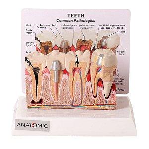 Patologia Dentária e Placa Explicativa em 2 partes - TGD-0311-J