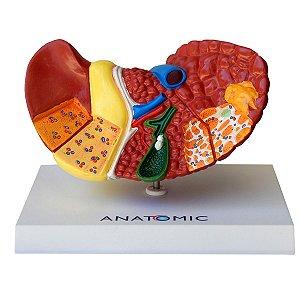 Fígado com Patologia - TZJ-0324-P