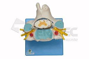 Vértebra Cervical com Cordão Espinhal e Vasos - SD-5013