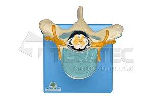 Vértebra Torácica com Cordão Espinhal - SD-5014