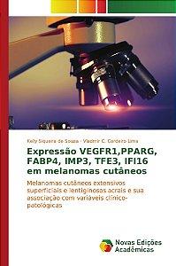 Expressão VEGFR1,PPARG, FABP4, IMP3, TFE3, IFI16 em melanomas cutâneos