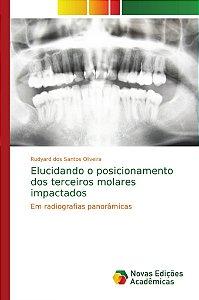 Elucidando o posicionamento dos terceiros molares impactados