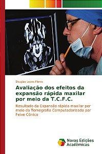 Avaliação dos efeitos da expansão rápida maxilar por meio da T.C.F.C.