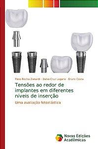 Tensões ao redor de implantes em diferentes níveis de inserç