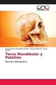 Torus Mandibular y Palatino