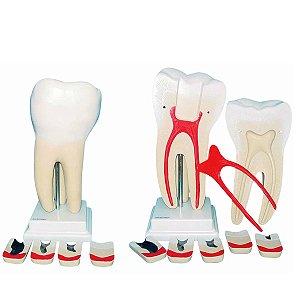 Modelo Anatômico Dente Molar Ampliado 8 Partes com Evolução da Cárie