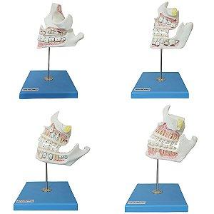 Modelo Anatômico Desenvolvimento da Dentição, 4 peças