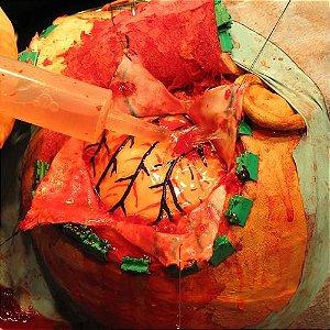 Crânio - Simulador de cirurgia de hematoma subdural e de ventriculostomia - 3B Scientific