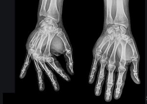 Rx da Mão (unilateral)