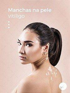 Pigmerise 20% Tratamento de Vitiligo e Manchas - 30g