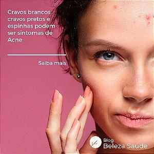 Ácido Glicólico 10% Tratamento da Acne